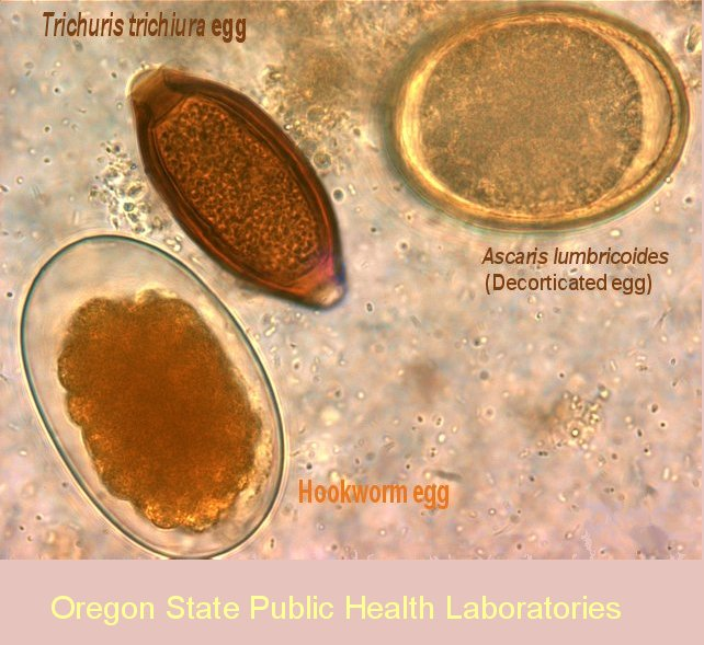 Oregon Health Authority : Parasite Images from the Oregon